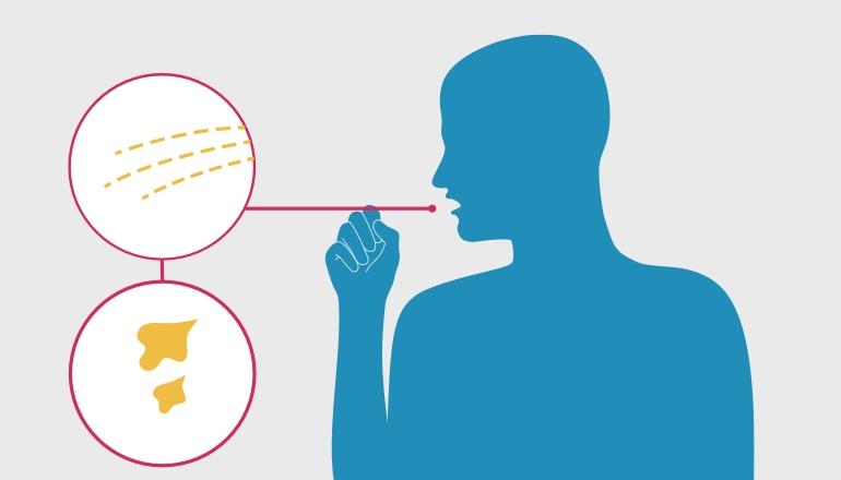 Илюстрация на мъж с влажна кашлица, което е симптом на хроничен бронхит